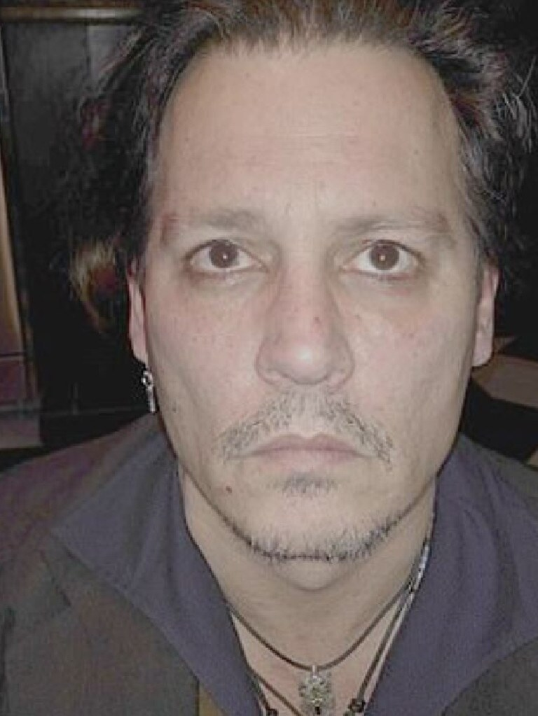 Johnny Depp also provided pictures of his bruised face. Picture: Fairfax County