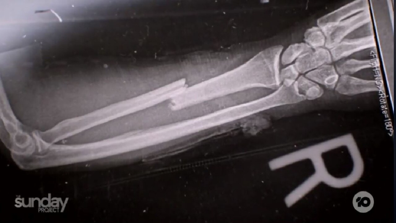 Quinton Peck's arm was broken during the incident. Picture: The Project.