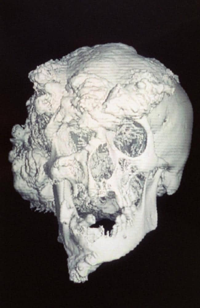 The skull of Joseph Merrick. Picture: Alamy