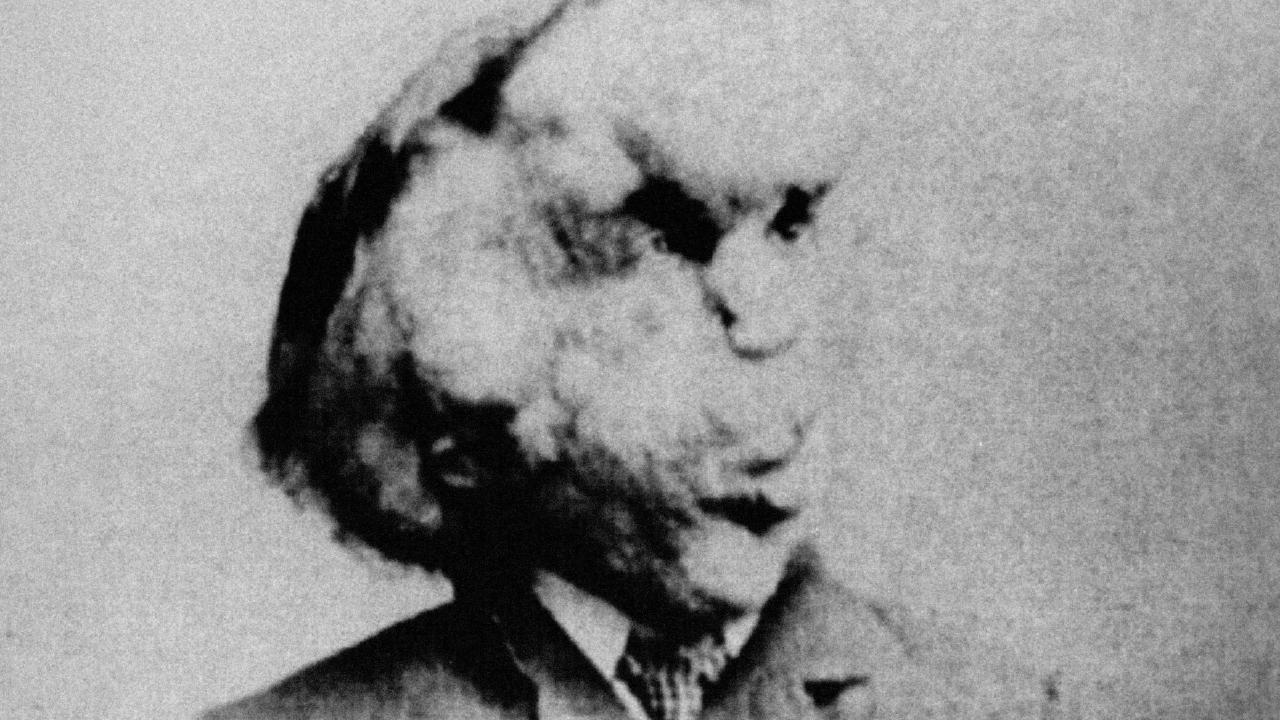 "Joseph Carey Merrick came to be known as the Elephant Man"" due to the skin on his face. Picture: Alamy"