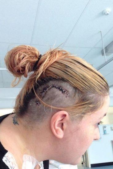 The mum underwent intensive brain surgery during her pregnancy. Source: The Sun