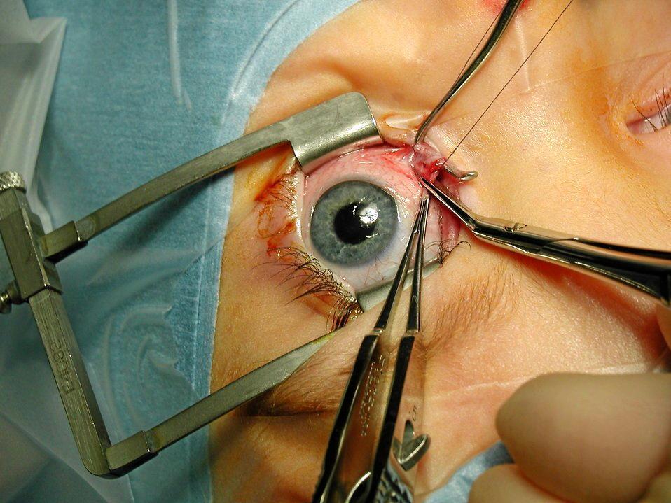 Surgery, eyes, medical equipment, health, opthalmology