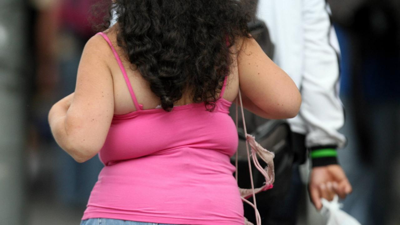 About 30 per cent of the world's adult population is either overweight or obese.