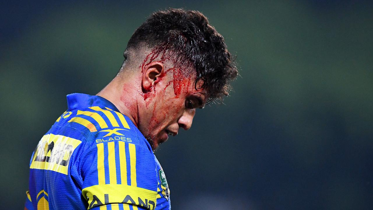 Parramatta Eels hooker Kaysa Pritchard endured plenty of injuries in a short space of time. Picture: Justin Kennedy