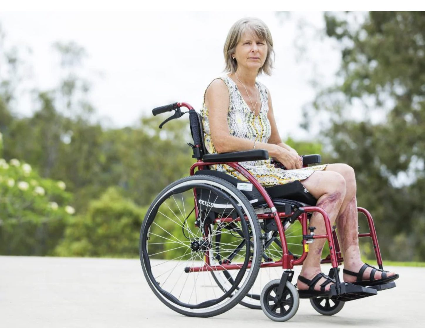 Sandy Bampton from Ninderry, who has suffered long-term damage to both of her legs when an out-of-control car hit her and killed her granddaughter Indy Armstrong in a Nambour Car Park. Picture: Lachie Millard