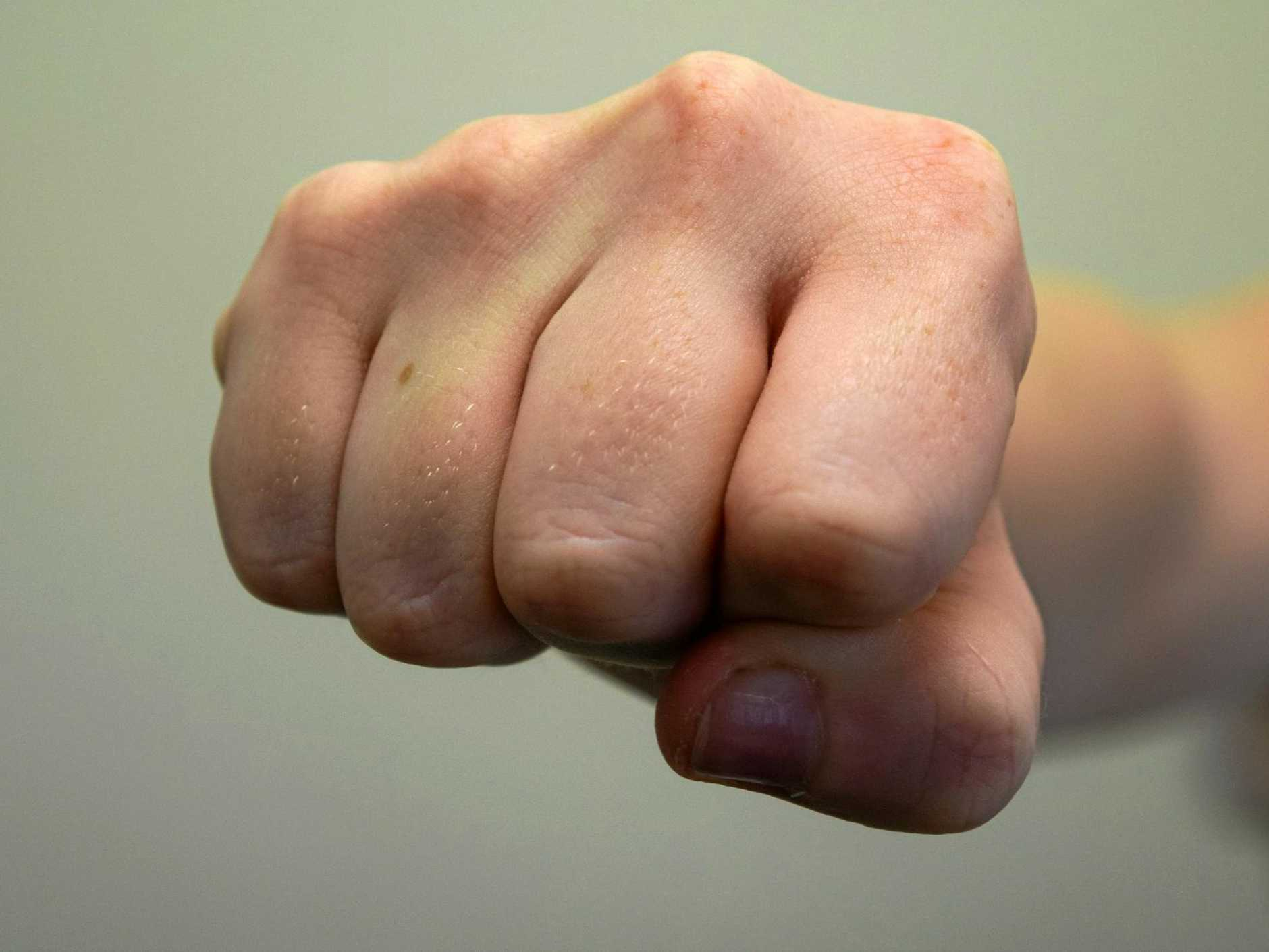 Man will face court over a coward punch in Casino.