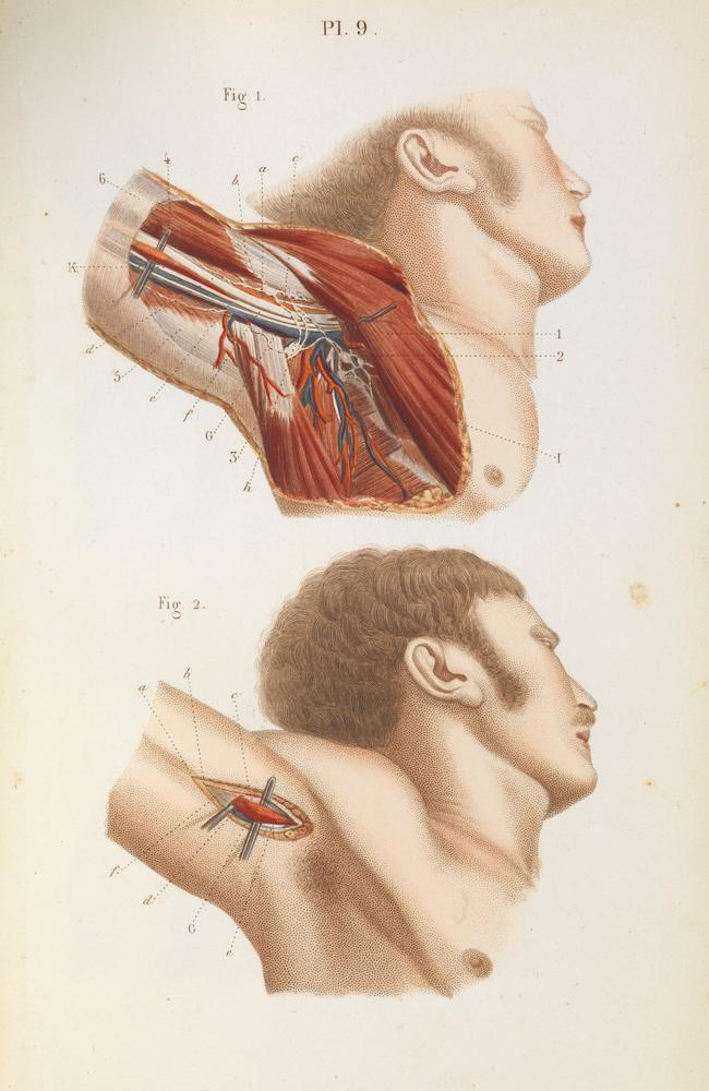 Ligature of the axillary artery in the armpit. Picture: Wellcome Library