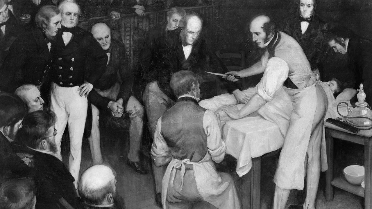 Robert Liston operating. The artist was Ernest Board of Bristol (1877-1934), and this was one of the paintings he was commissioned to paint by Henry S. Wellcome circa 1912. Credit: Wellcome Collection.