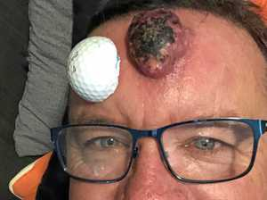 Graphic images: Man's stunning surgical transformation