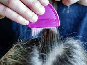 New 'super lice' nearly impossible to kill