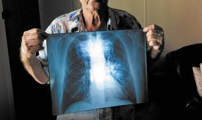 BLACK LUNG: The Queensland State Government have started a register for dust lung diseases.