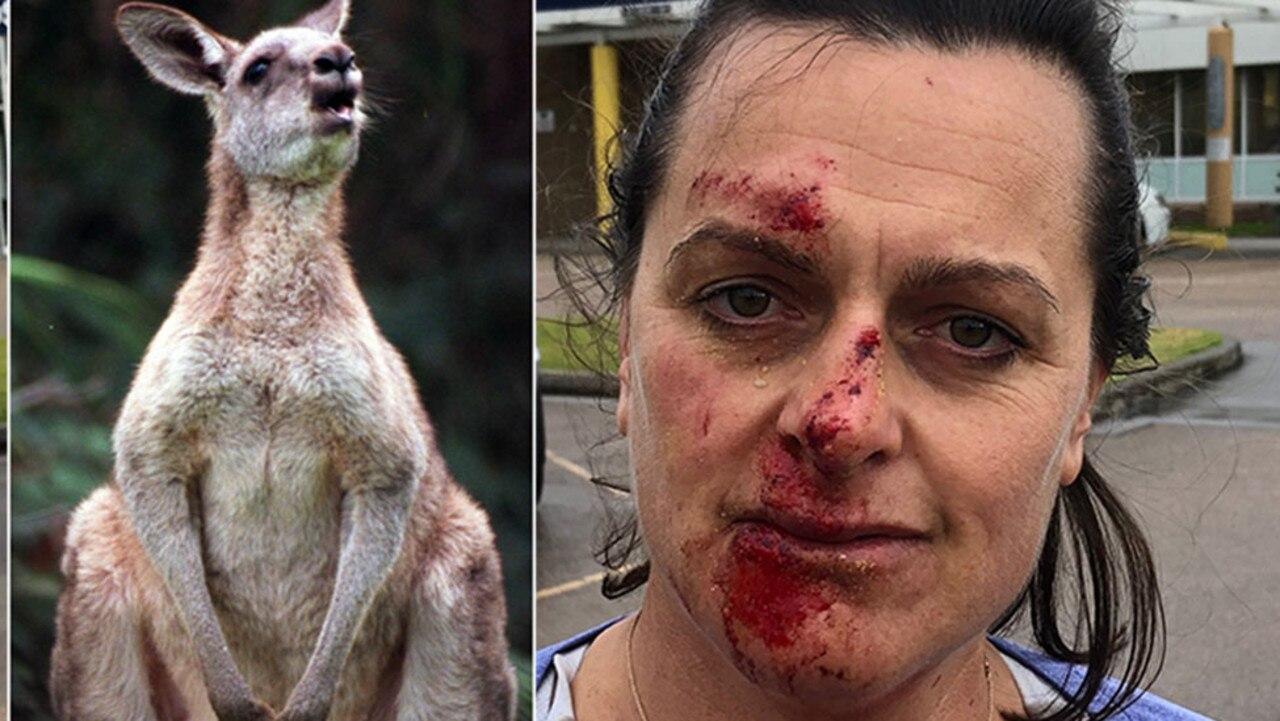 Joanna Mactier after a kangaroo attack