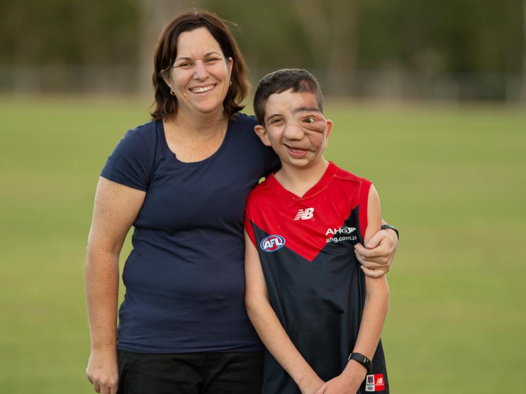 Nicholas Daisley with mum Dannielle. Picture: Steve Vit