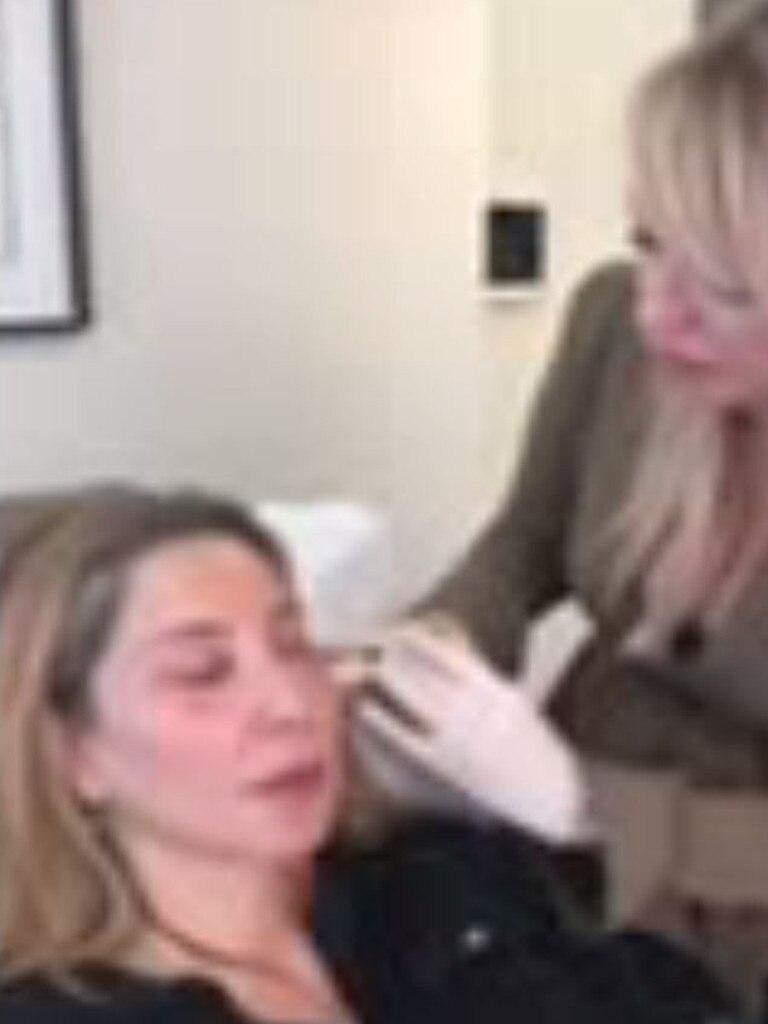 Matty Samaei receiving a Vampire facial.