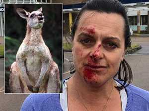 Massive roo attacks female  jogger