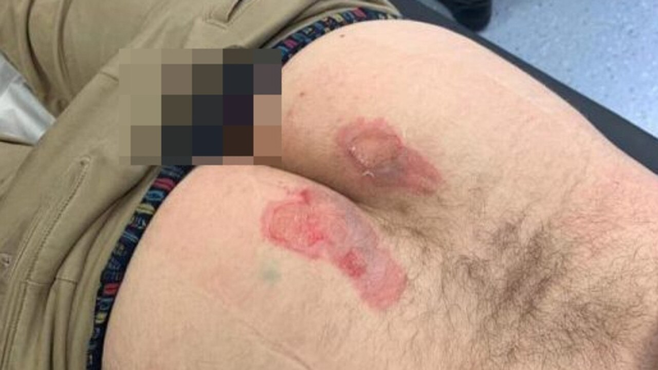 He claimed the wound became infected after he was ordered to return to work against medical advice. Picture: Facebook