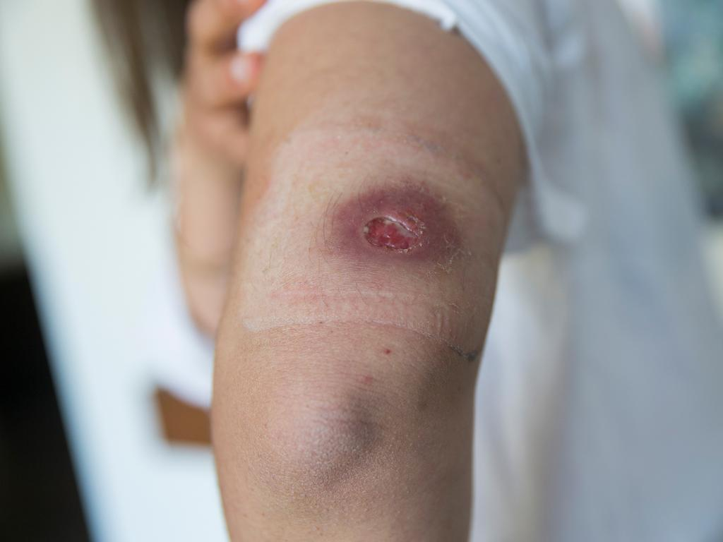 The Mornington Peninsula continues to be affected by the spread of the mysterious Buruli Ulcer, with infected patients continuing to be reported with greater numbers than the year before. Picture: Paul Jeffers