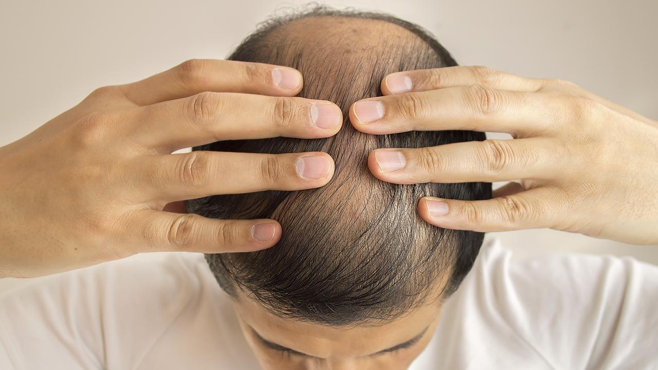 Aussie blokes are travelling to Turkey for hair transplants. PHOTO: ISTOCK.