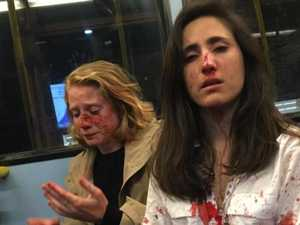 Teens hit with hate crime charges over bus attack