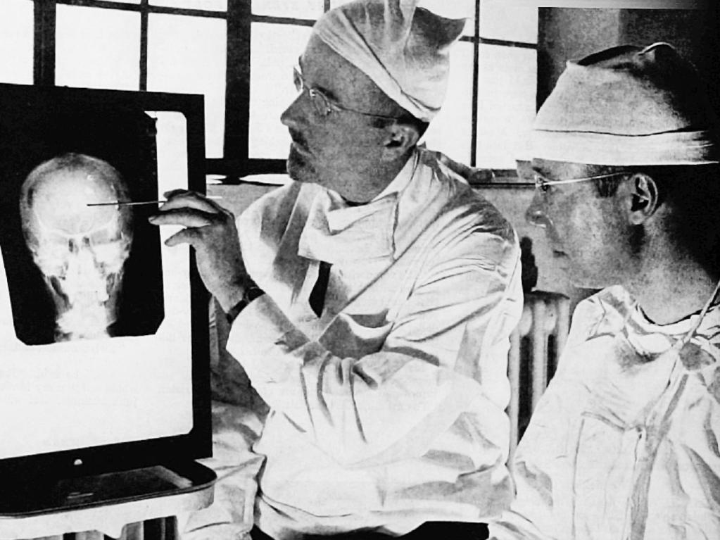 Dr. Walter Freeman and Dr James W. Watts study an X-ray in 1941 before a psychosurgical operation. Psychosurgery involved cutting into the brain to rid a patient of delusions, obsessions, nervous tension. Picture: Harris A Ewing/Saturday Evening Post