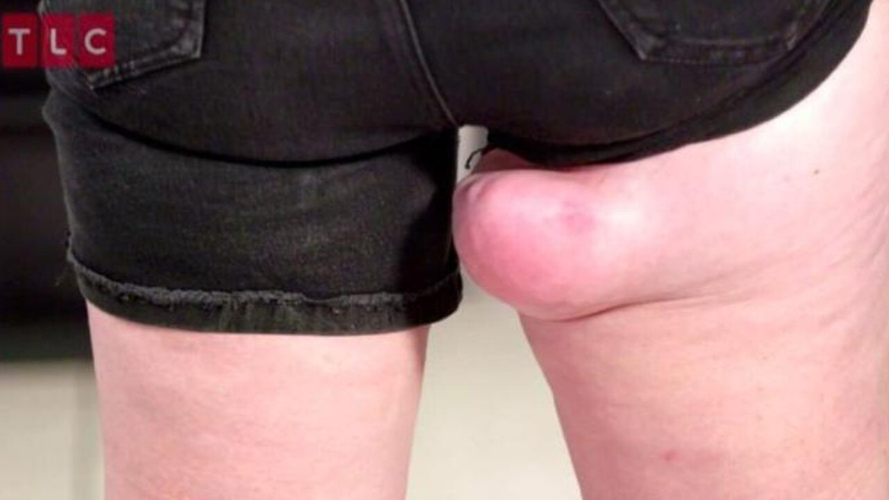 She lost 13kg and the lump didn't go down — if anything it got bigger. Picture: TLC
