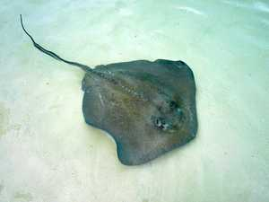 Boy, 14, hospitalised after sting ray attack