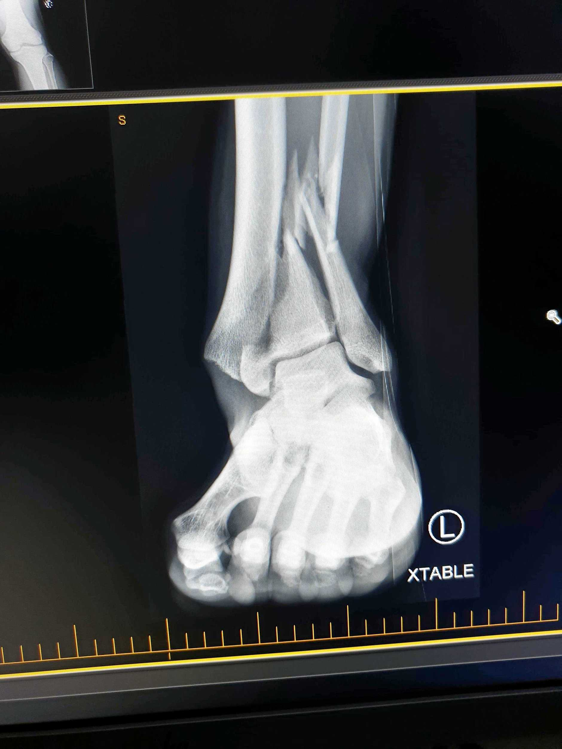 An x-ray shows Troyson Bassani's broken tibia and fibula.