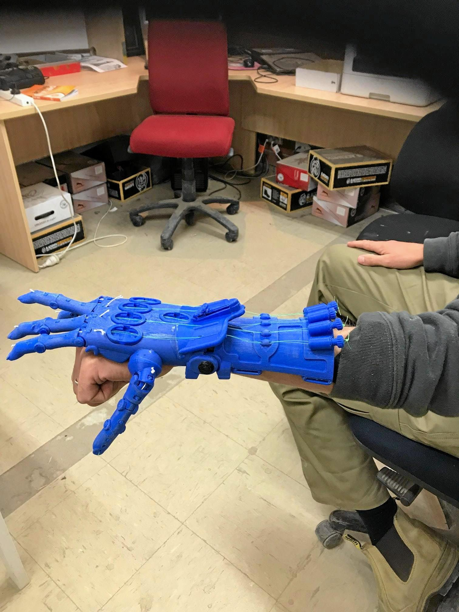 HELPING HAND: Victorian-based Envision Hands is turning bottle caps into prosthetic limbs.