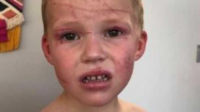 Boy mauled by 'crazy' kangaroo