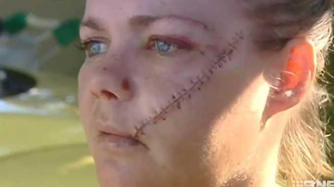 Man on parole when he slashed woman's face