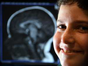 Study finds how to keep a child's mind healthy
