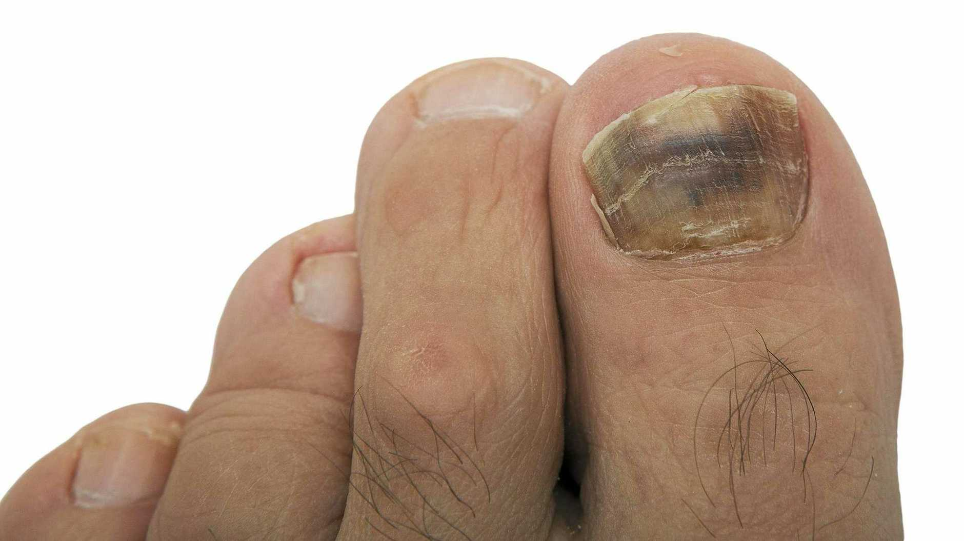 NAIL HEALTH: A new dark line in a light skinned person's nail may be the sign of early melanoma of the nail.