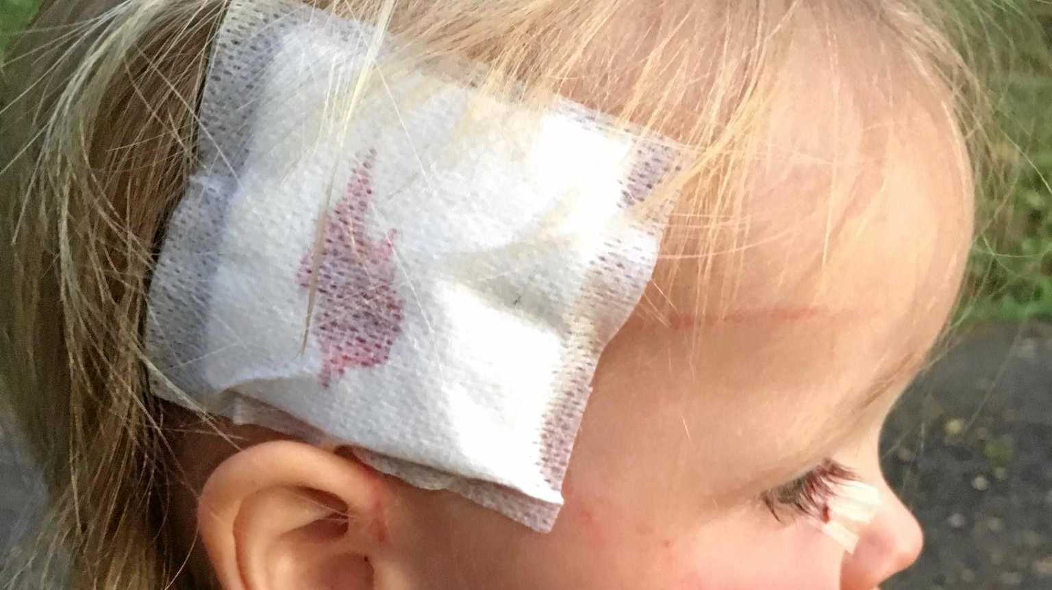 YOUNG: 20-month old Aedan King from Turntable Falls is recovering from the rooster attack on Sunday.