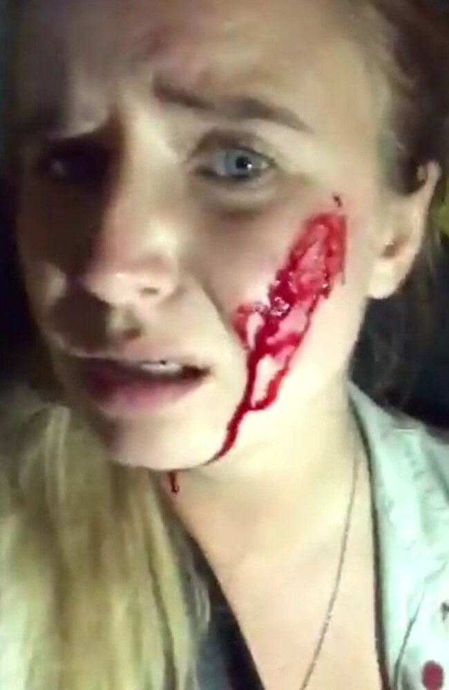 Blood drips down the woman's face in the video.