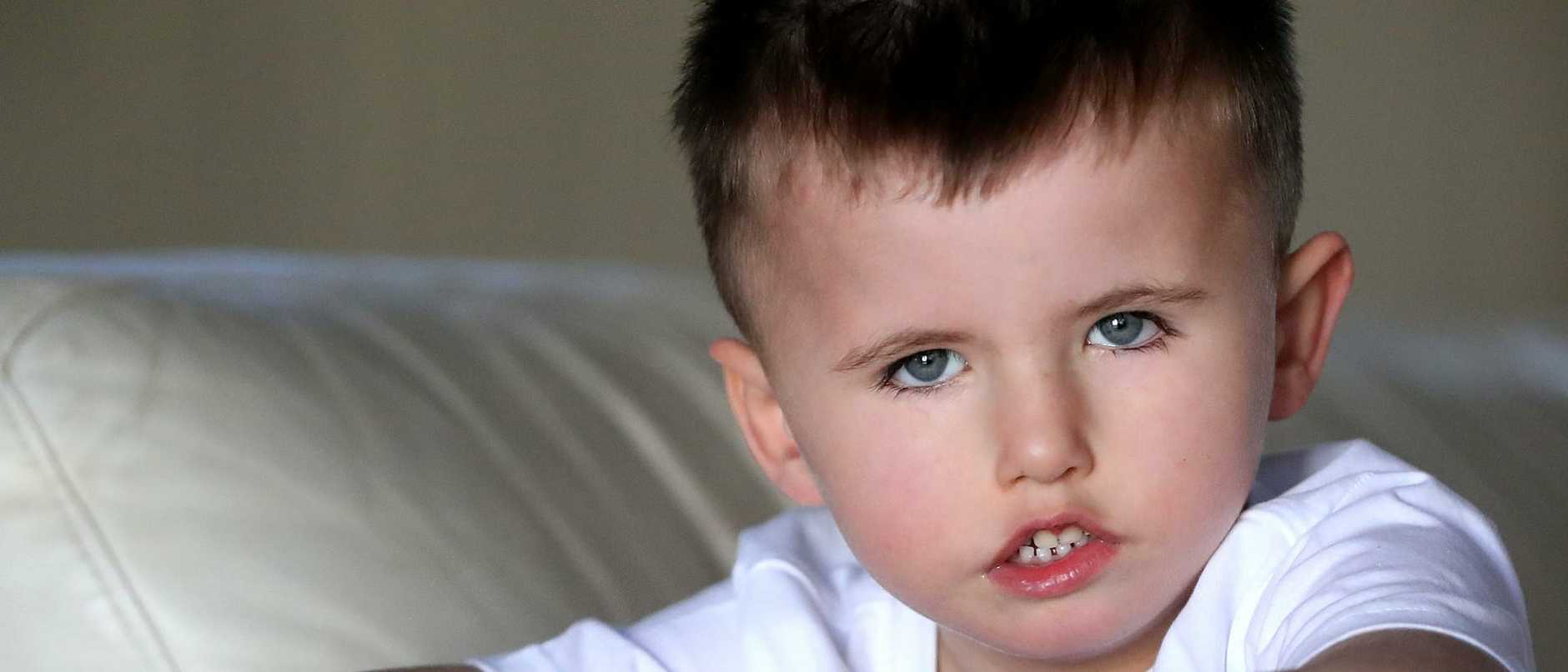 Levi Nikolic was born with a rare condition that causes facial paralysis.
