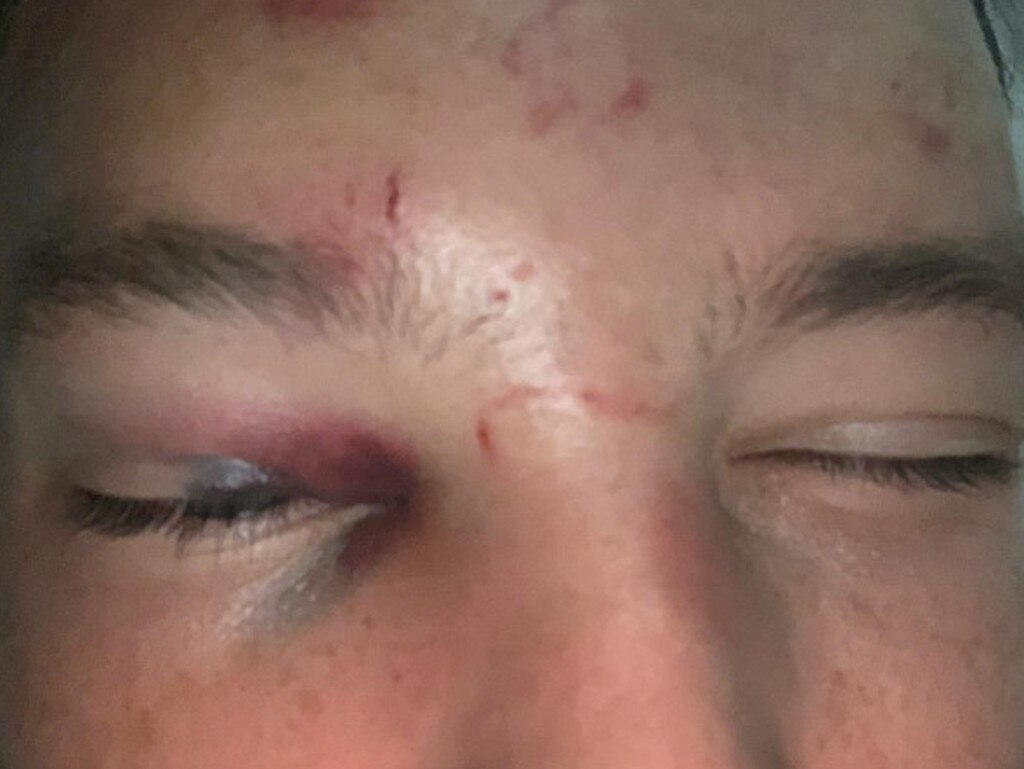 Danny Drinkwater's swollen face after the attack.