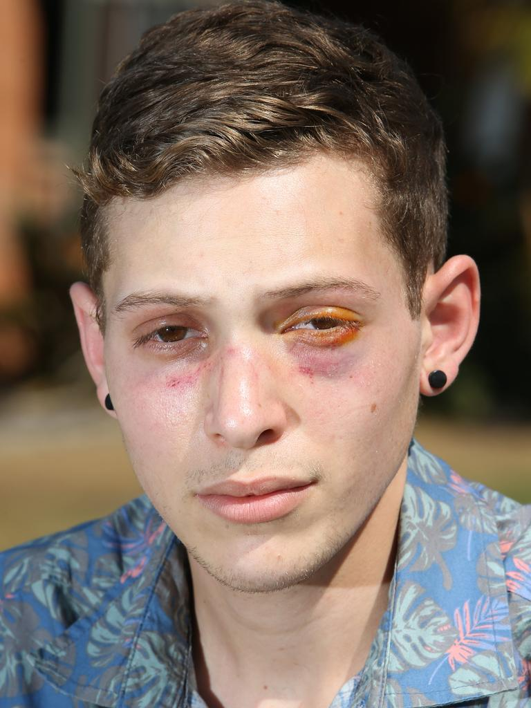 Joshua the day after the alleged attack. Picture Glenn Hampson
