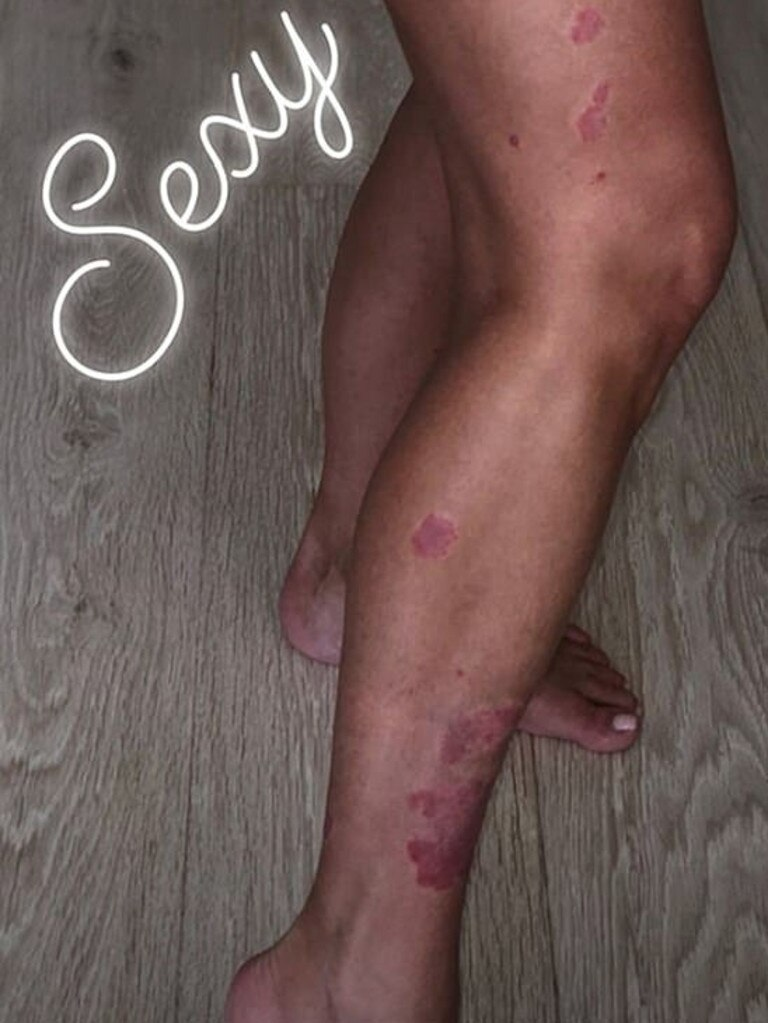 Kim Kardashian has psoriasis and psoriatic arthritis. Picture: Instagram