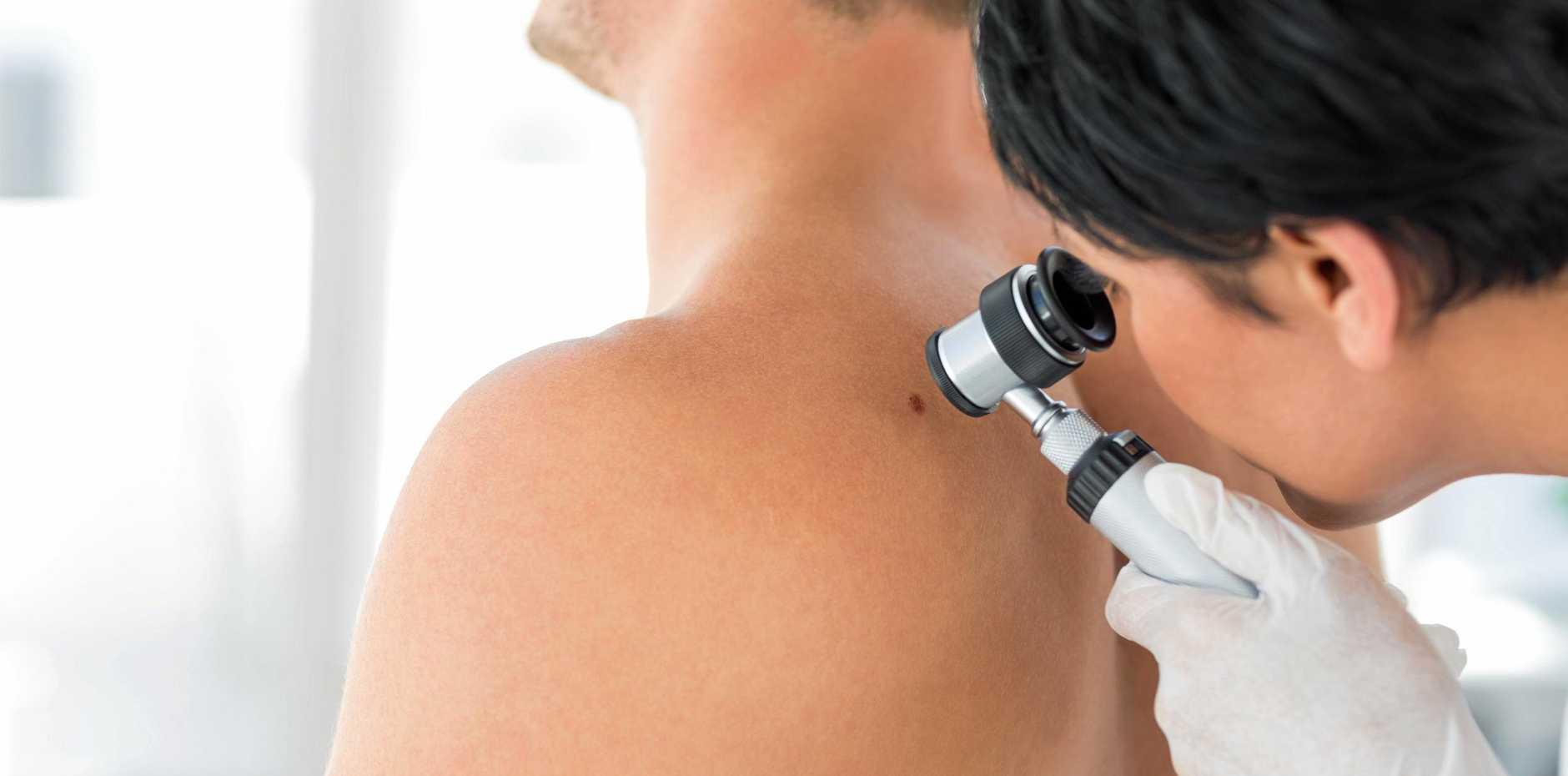 TAKE THE TIME: Regular skin checks are advisable.