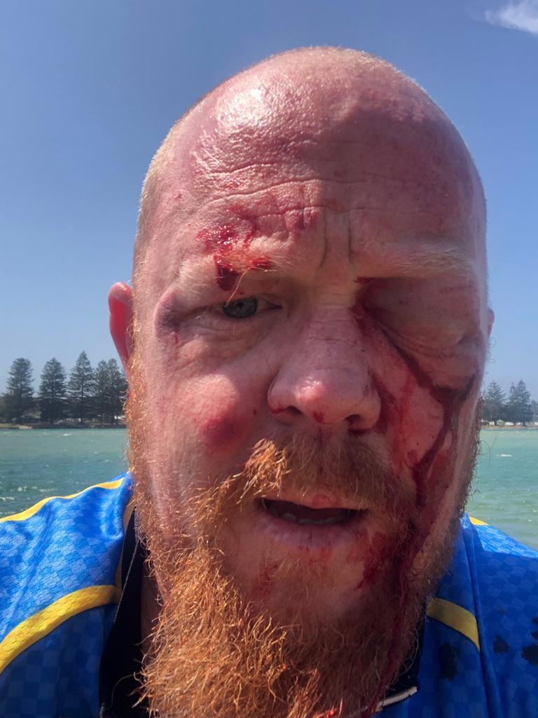 Daniel Mansbridge after the incident.