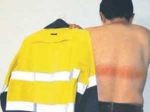 Warning over tradie's freak burn from shirt