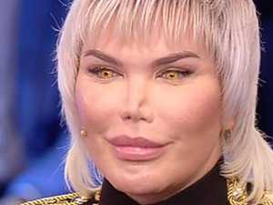 'Human Ken doll' unrecognisable after 72 surgeries