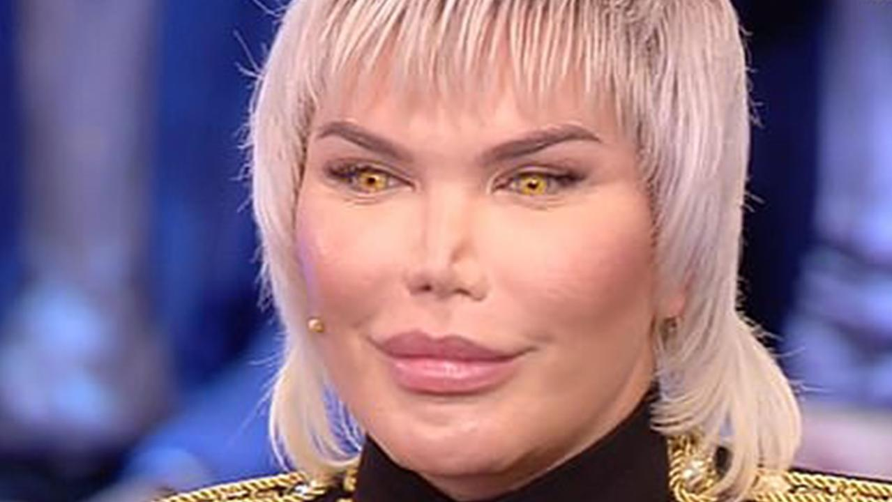 Rodrigo Alves' nose might be collapsing. Picture: Domenico Live