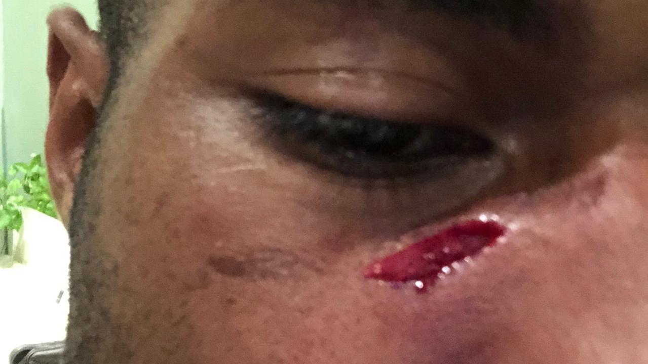 Suliasi Vunivalu assaulted in Bali