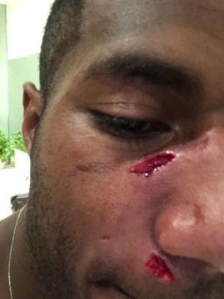 Suliasi Vunivalu was assaulted in Bali.