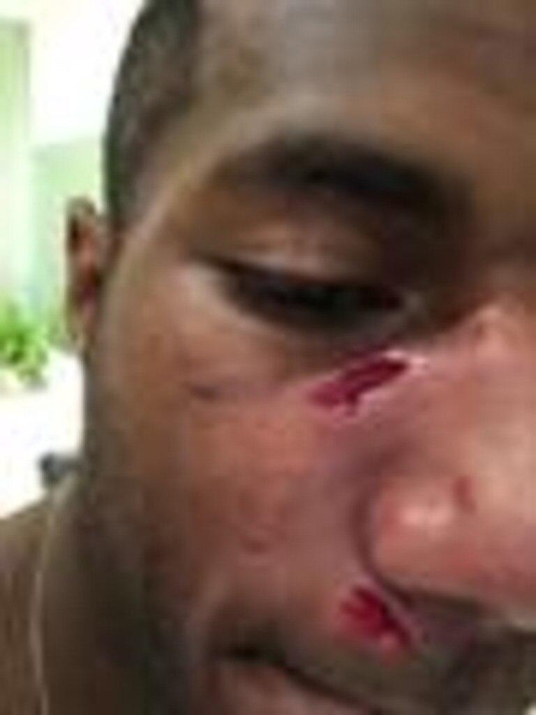 Vunivalu's injuries.
