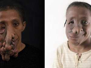 Surgeons give woman new face