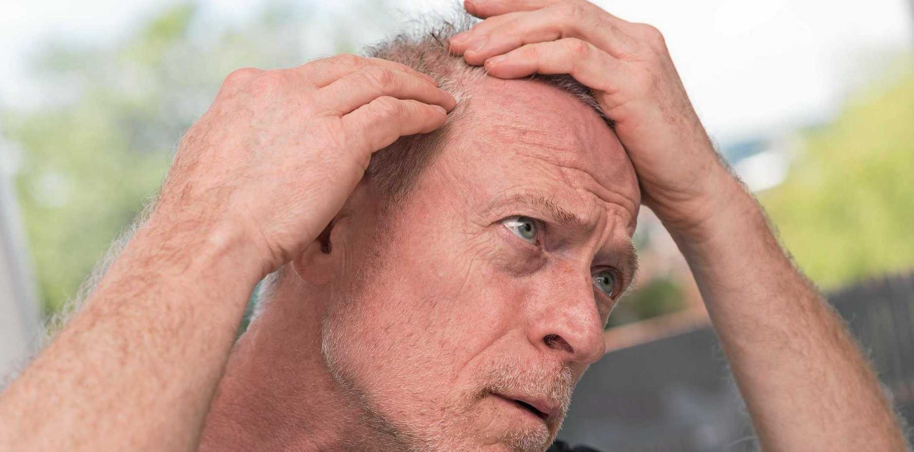 SUN SENSE: The scalp is a high-risk site which, if neglected, can lead to some nasty outcomes.