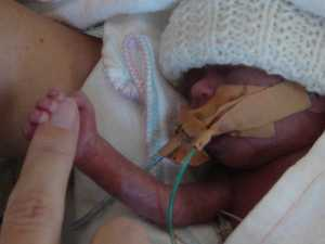 'Miracle baby' to conquer Noosa Tri after fight for life