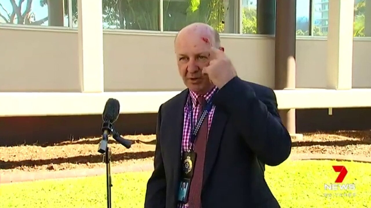 Sen Sgt Edwards shows off the battle scars. Picture: 7News